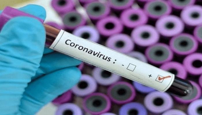 Azərbaycanda daha 57 nəfər koronavirusa yoluxdu - RƏSMİ