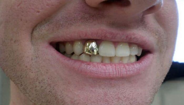 2020-ci ildə qızıl dişlər dəbdə olacaq