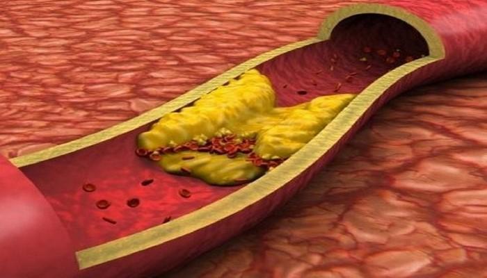 Диетолог назвала способ нормализовать уровень холестерина без лекарств
