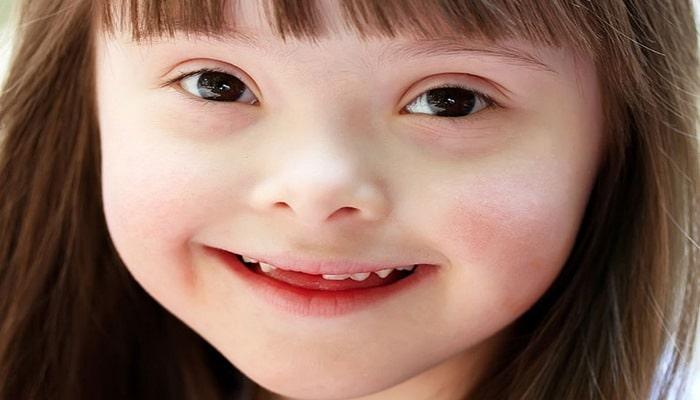 Daun sindromu. Ən çox rast gəlinən xromosomal anomaliya