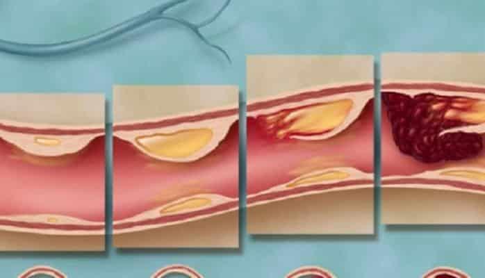 Damar tıxanmasının səbəbləri və simptomları