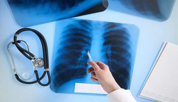 Минздрав выразил отношение к информации о распространении на некоторых территориях туберкулеза
