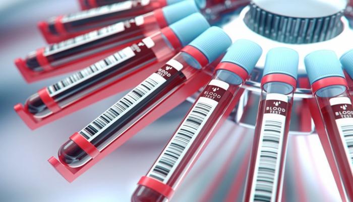 В Стэнфорде придумали анализ крови для замены колоноскопии