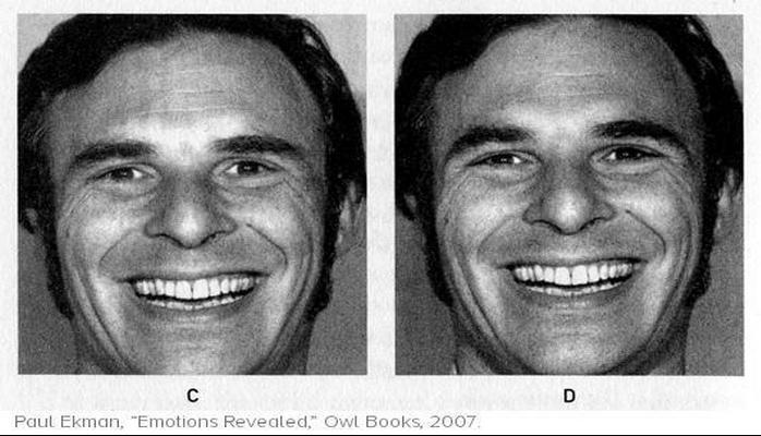 Sahte Gülümsemeyi Anlamanın Bilimsel Yolu: Duchenne Gülümseme Testi