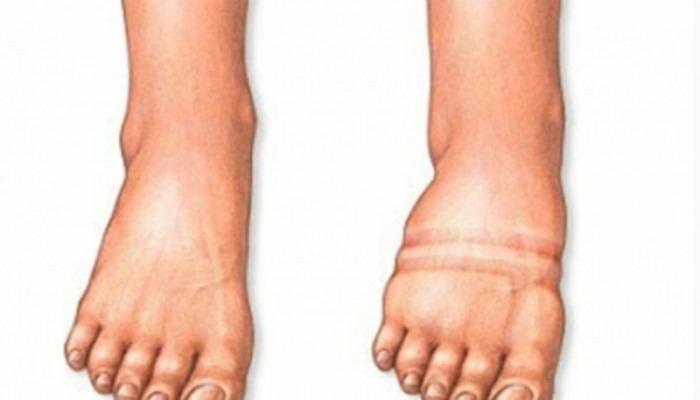 Ayaqlarda şiş yaranmasının səbəbləri nədir?