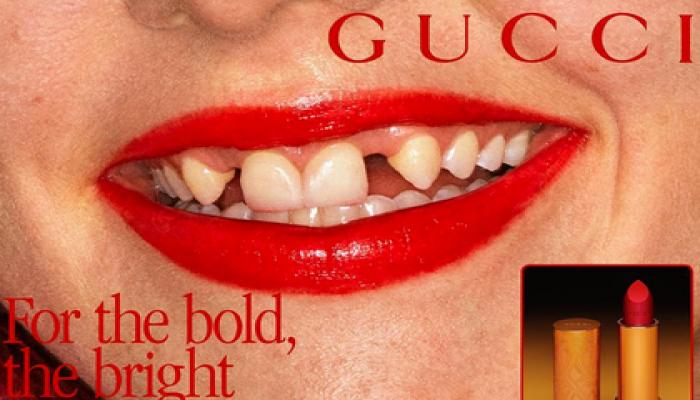 """Ön dişləri olmayan model """"Gucci""""nin siması oldu"""