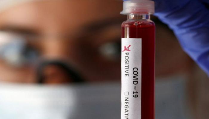 İranda son sutkada 63 nəfər koronavirusdan ölüb