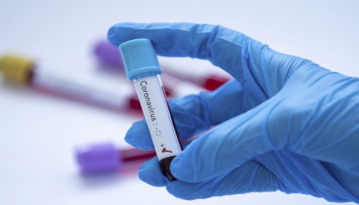 Число инфицированных COVID-19 в Азербайджане превысило 5 тысяч