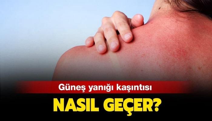 Güneş yanığı kaşıntısı nasıl geçer? Güneş yanığına ne iyi gelir?