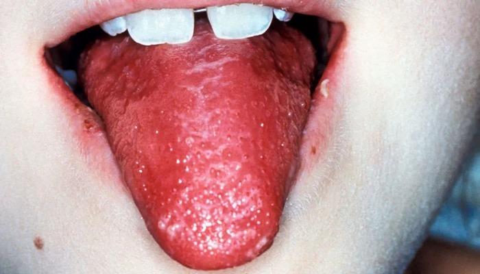 Kawasaki Hastalığı (Çilek Dillilik)
