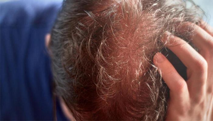 Obezite cerrahisi ve saç dökülmesi
