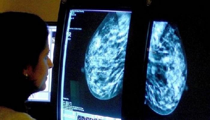 Обследование груди среди женщин в возрасте 40-49 лет спасает до 400 жизней ежегодно - исследование