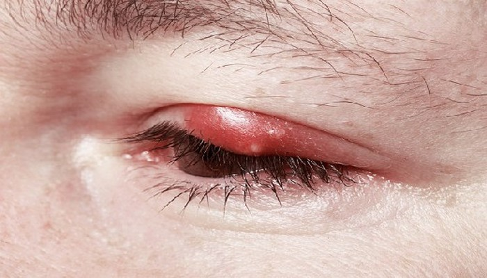 Почему опасно лечить ячмень уриной