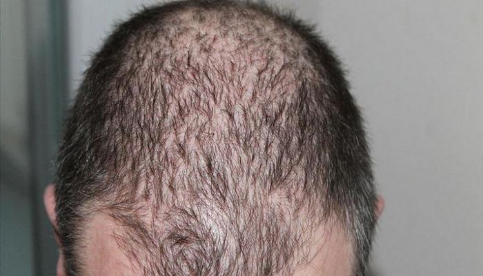 Saç dökülmelerinde Kovid-19 sonrası artış görüldü Kaynak: Saç dökülmelerinde Kovid-19 sonrası artış görüldü