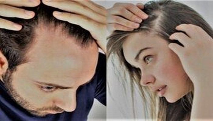 Saçı tökülənlərin diqqətinə: Mütləq bu qidalardan istifadə edin