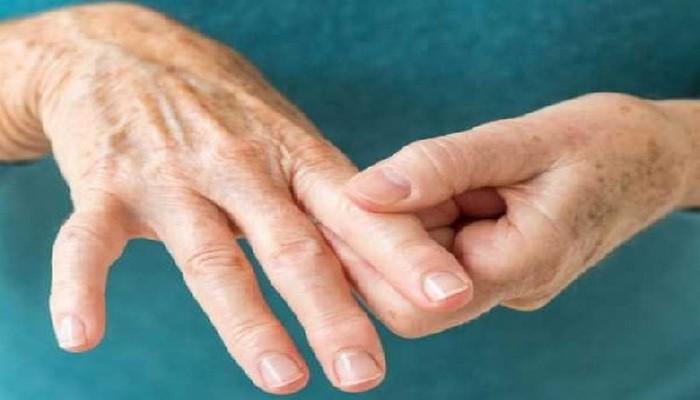 Симптомы артрита: знаки на коже, которые не стоит игнорировать