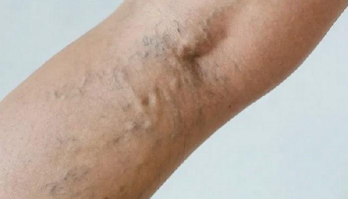 Тромбоз глубоких вен: названы опасные симптомы