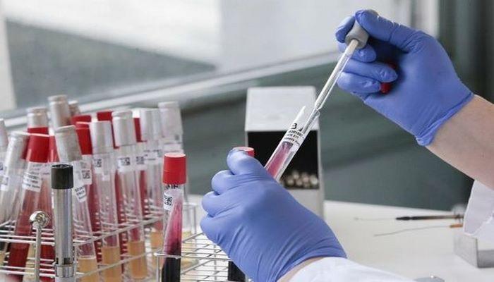 В Азербайджане выявлены 144 новых случая инфицирования COVID-19, скончались еще три человека