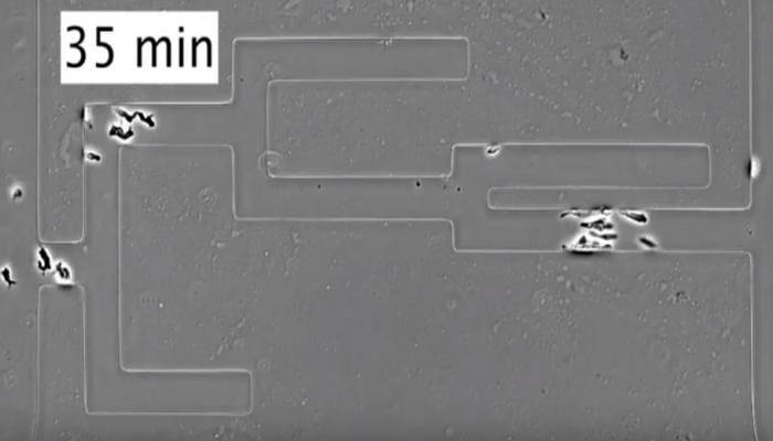 İnanılmaz sınaq: laboratoriyada xərçəng hüceyrələri labirintdən dəqiqliklə çıxa bildilər
