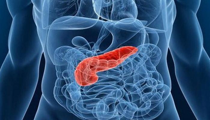 Xroniki pankreatitin fəsadları
